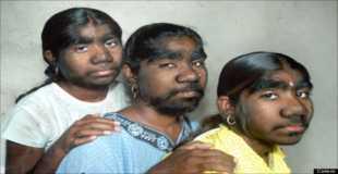 【画像】インドのウルフ三姉妹のインパクトがすごい