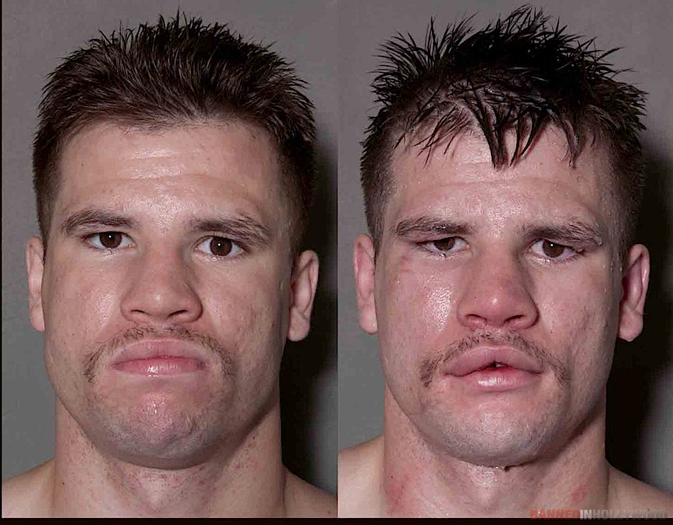 boxers-before-after-fights-banned-in-hollywood02