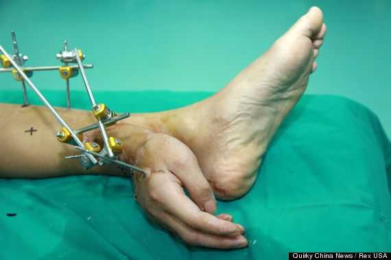 o-HAND-ANKLE-570_R