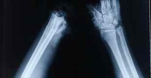 【閲覧注意】事故によって砕かれた手をなんとか修復