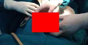 【画像】65歳の患者から出てきた膀胱結石がデカすぎる《゚Д゚》