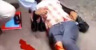 【動画】事故で足がパックリ割れて骨が丸見え