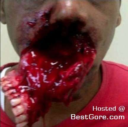 man-has-upper-teeth-knocked-out-one-chunk_R