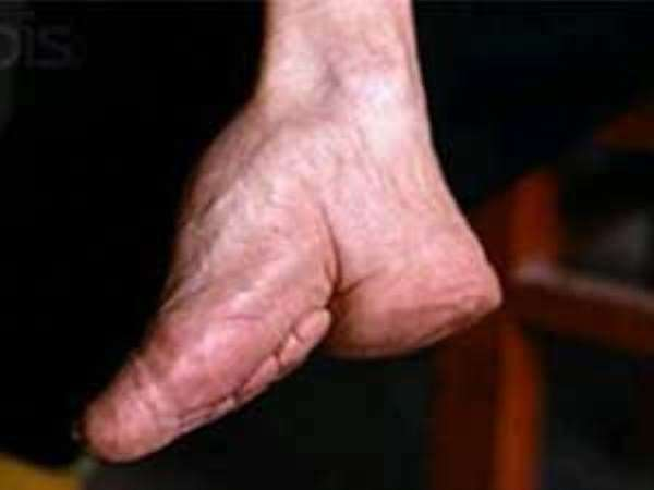 foot-binding-china-1