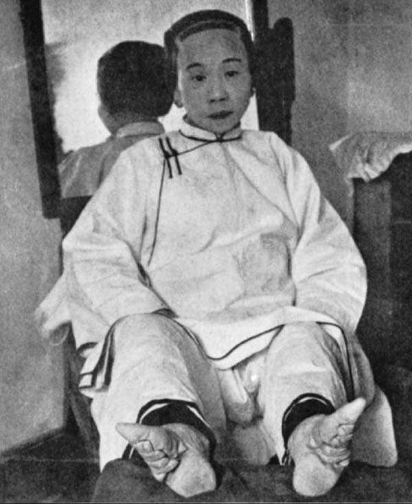 foot-binding-china-10