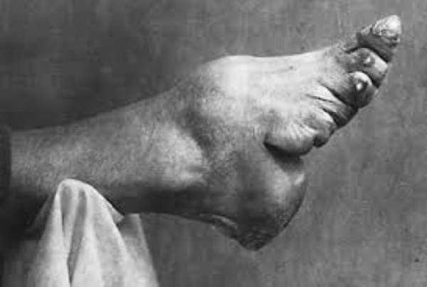 foot-binding-china-19