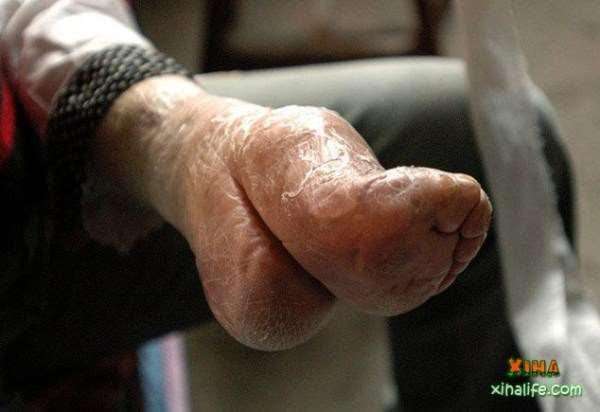 foot-binding-china-2