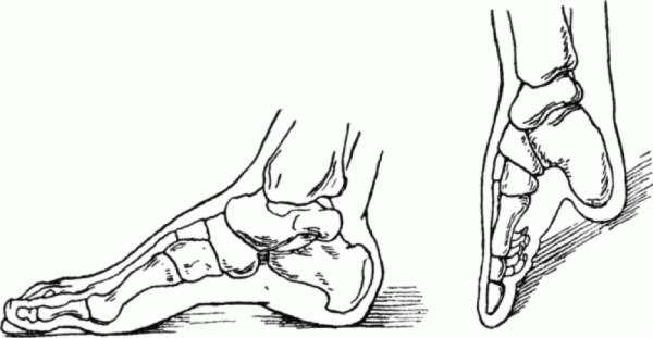 foot-binding-china-6