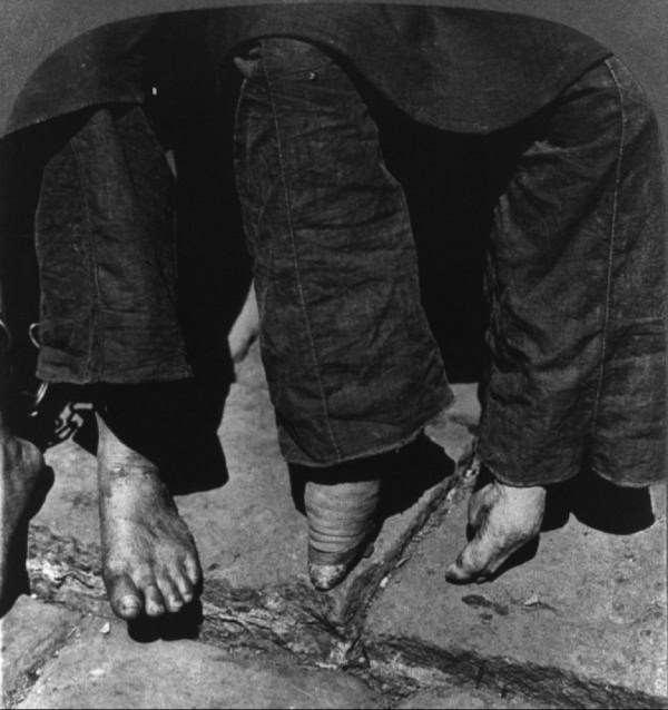 foot-binding-china-9