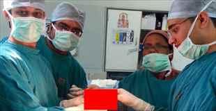 【画像】腹痛を訴える男性、手術をしてみると腹からこんなものが
