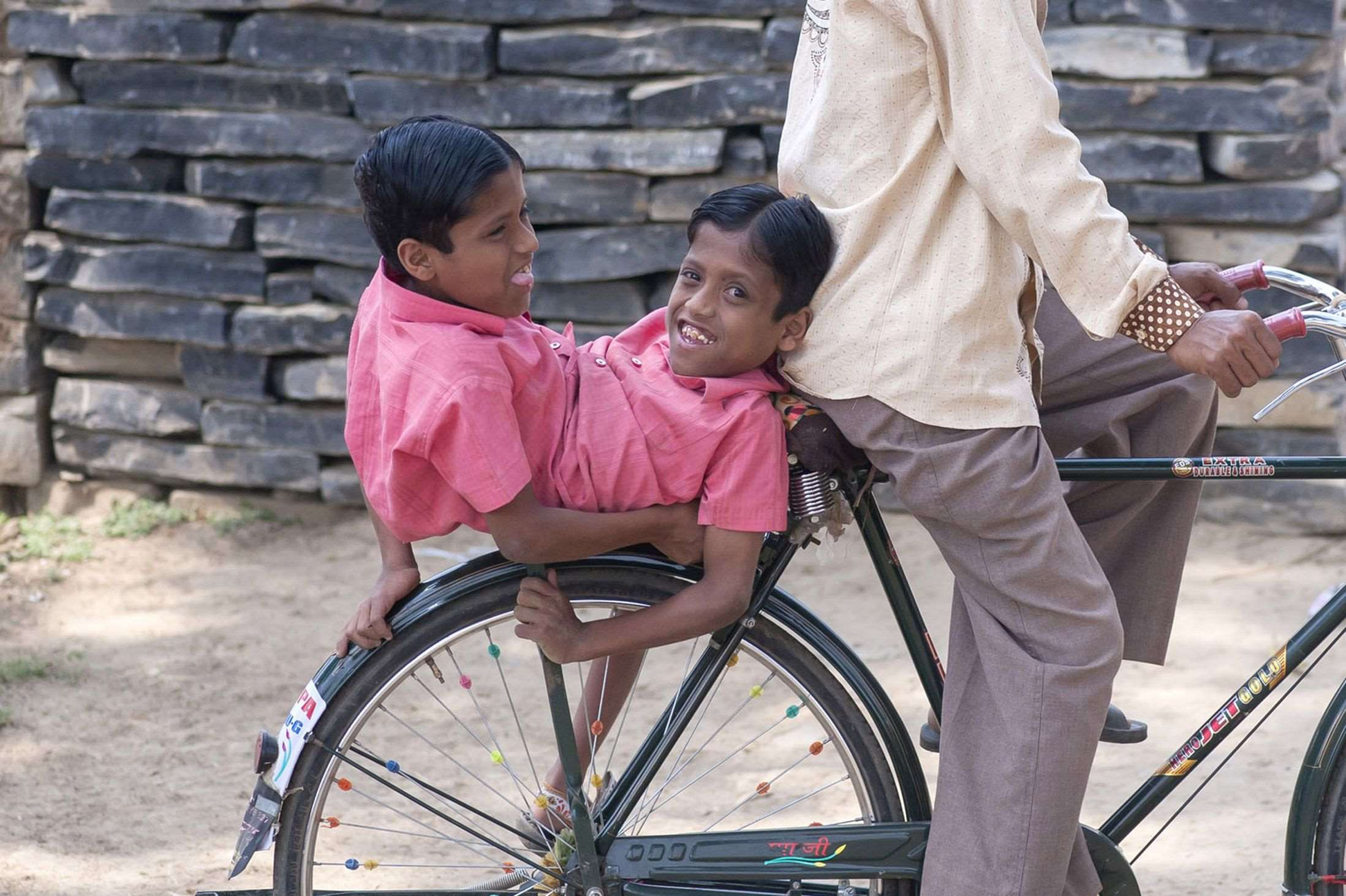 Conjoined-twins-Shivnath-and-Shivram-3397061