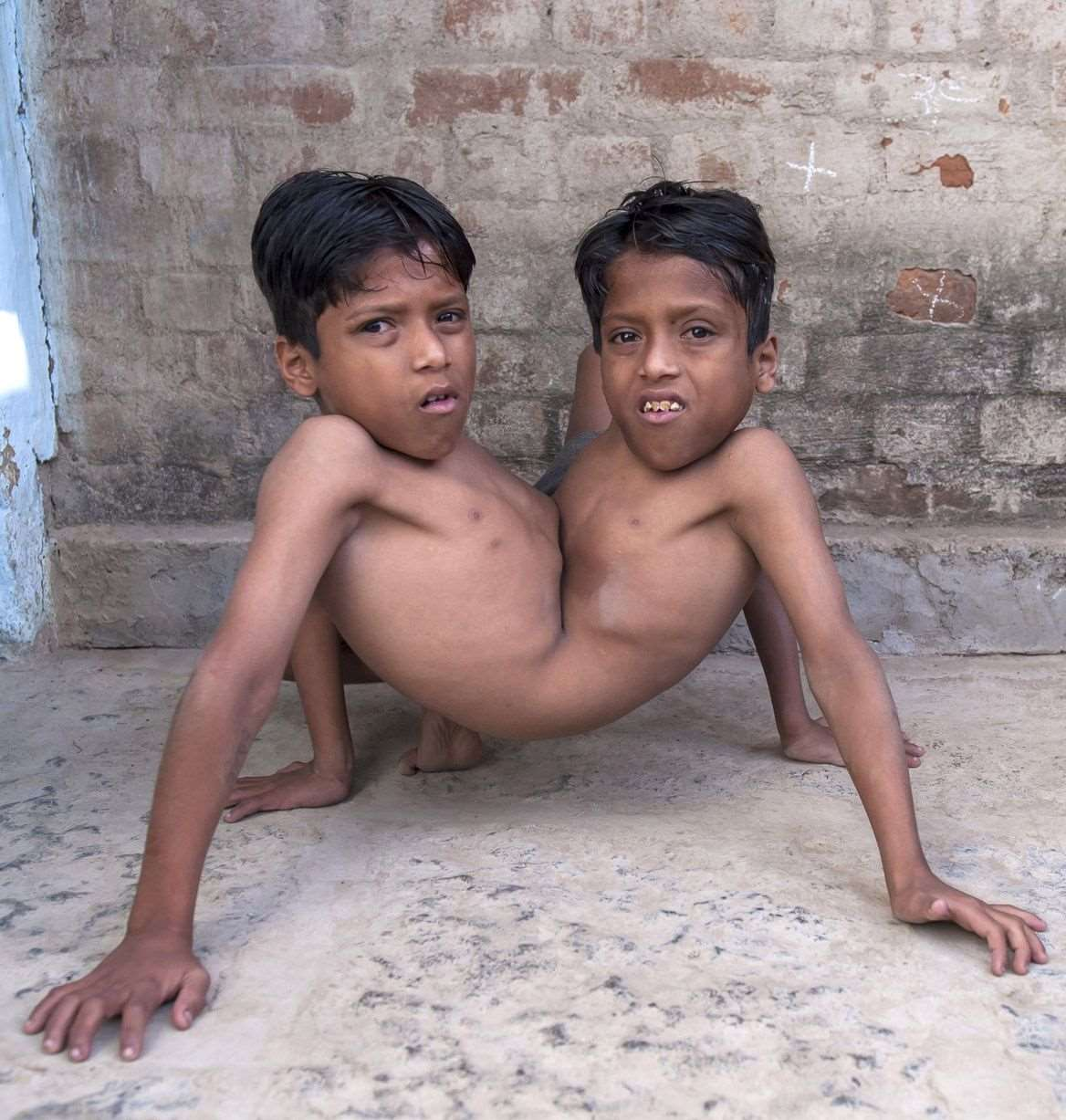 Conjoined-twins-Shivnath-and-Shivram-3397062