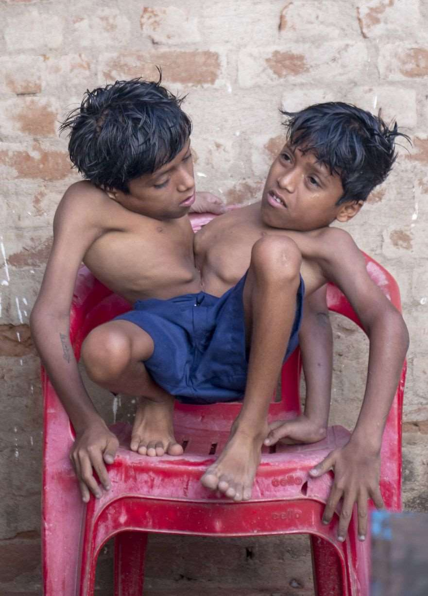 Conjoined-twins-Shivnath-and-Shivram-3397063