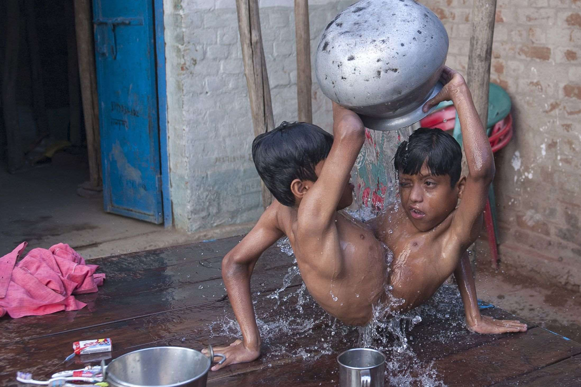Conjoined-twins-Shivnath-and-Shivram-3397064