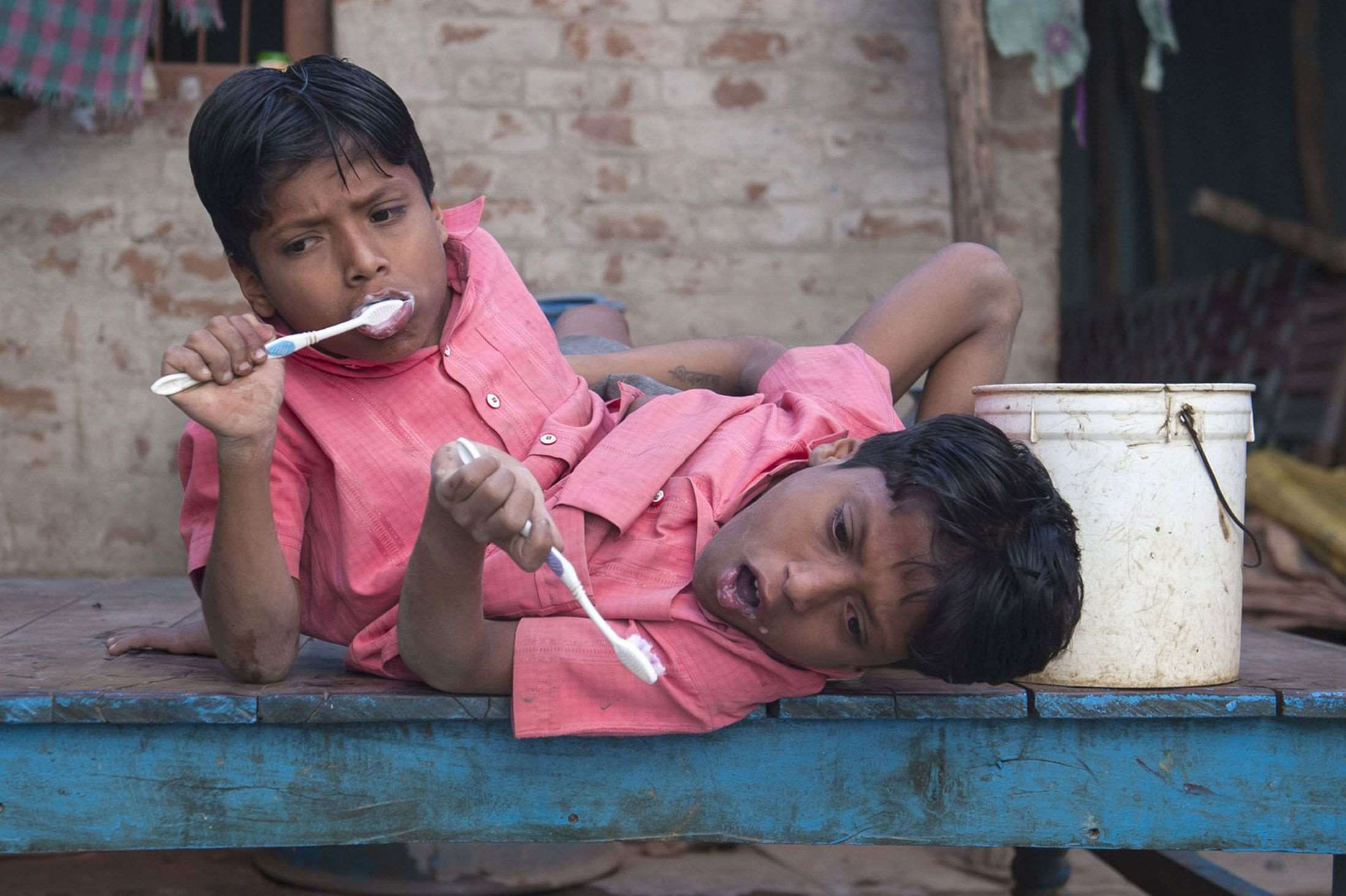 Conjoined-twins-Shivnath-and-Shivram-3397065