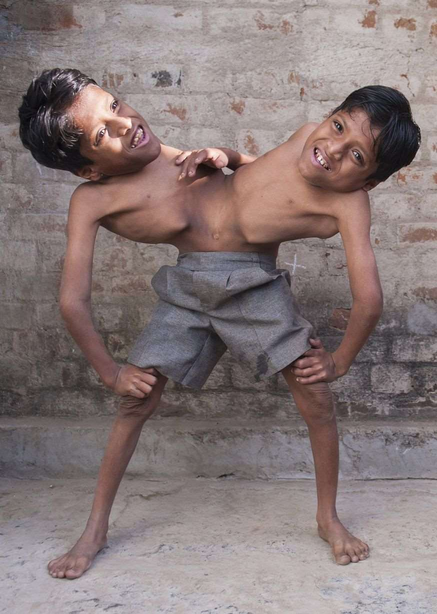 Conjoined-twins-Shivnath-and-Shivram-3397067
