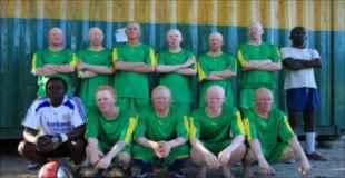 【画像】アルビノの人達で編成されたサッカーチームがあった