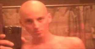 【画像】癌を克服した少年がボディービルを始めた結果