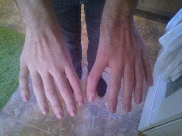 1415045120_hand_syndrome_03