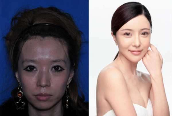 plastic-surgery-in-china-1