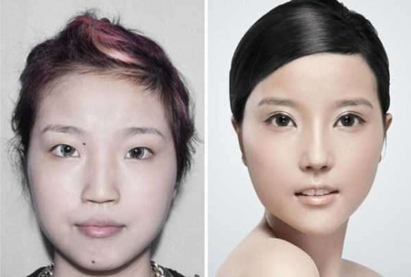 plastic-surgery-in-china-10