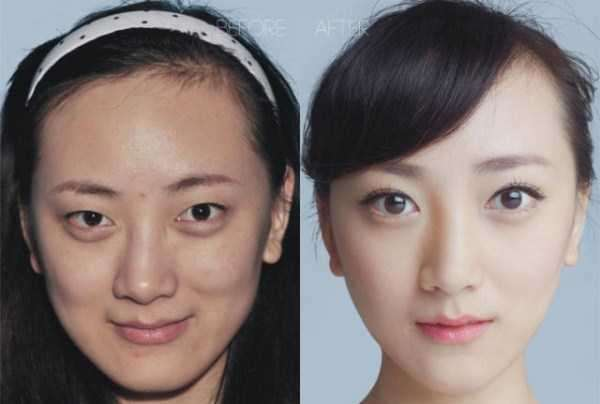 plastic-surgery-in-china-12