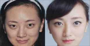 【画像】中国人女性の整形画像ビフォーアフター