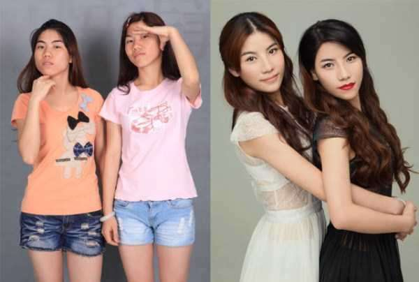 plastic-surgery-in-china-13