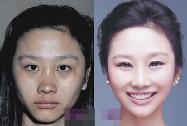 plastic-surgery-in-china-14