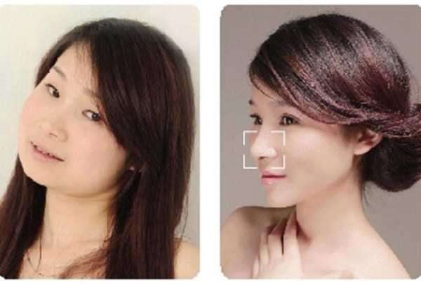 plastic-surgery-in-china-15