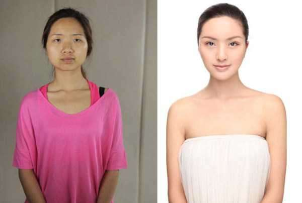 plastic-surgery-in-china-16