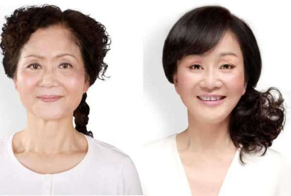 plastic-surgery-in-china-17
