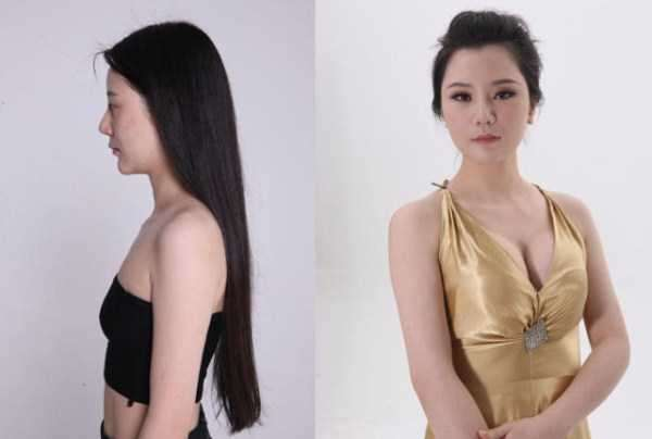 plastic-surgery-in-china-18