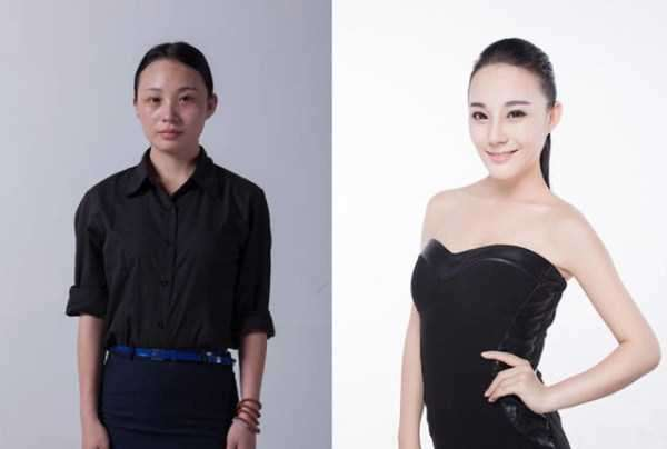 plastic-surgery-in-china-19
