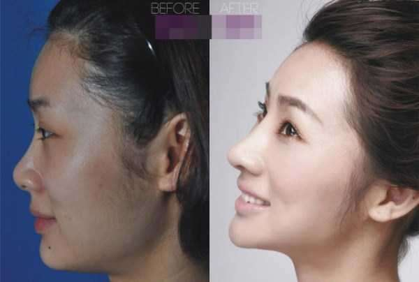 plastic-surgery-in-china-2