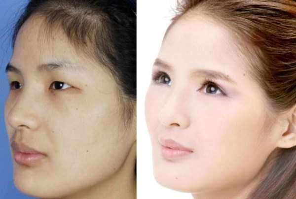 plastic-surgery-in-china-3