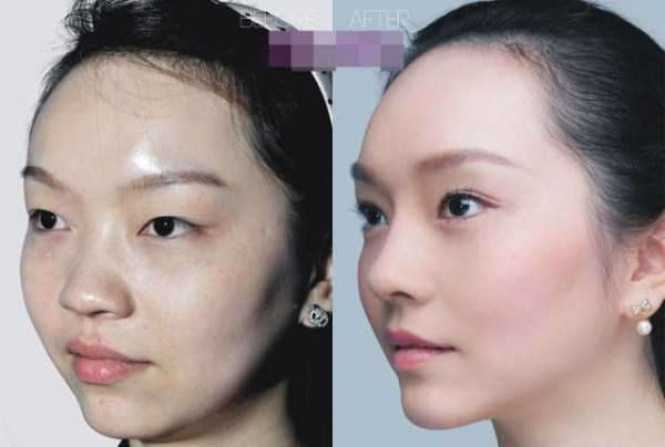 plastic-surgery-in-china-5