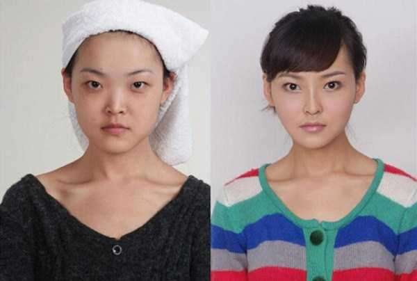 plastic-surgery-in-china-6