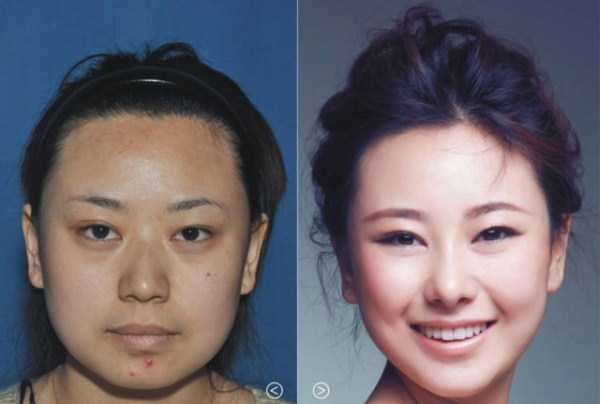 plastic-surgery-in-china-7