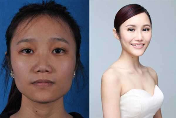 plastic-surgery-in-china-8