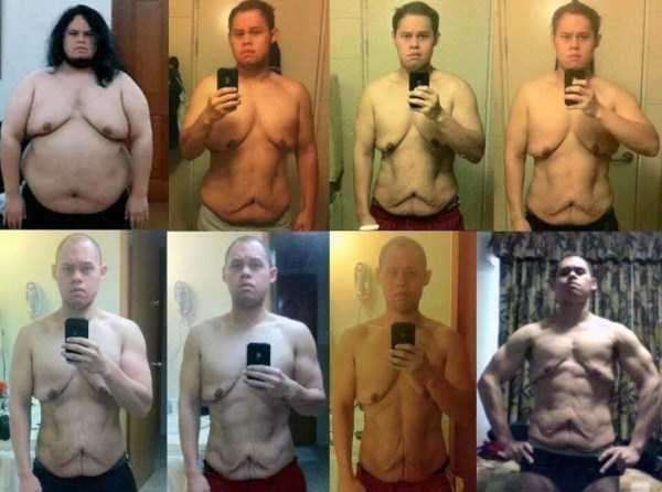 weight-loss-excess-skin-20
