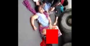 【超・閲覧注意】事故でスネから下が骨だけになってしまい救助を待つ女性…。