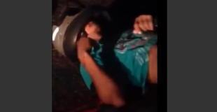 【閲覧注意】オートバイの事故で胃が飛び出してしまっている男性の動画…。