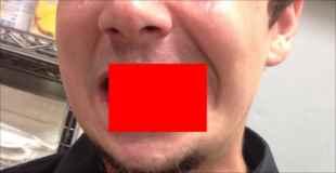 【画像】下顎を骨折した結果がコレ