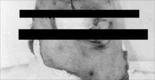 【閲覧注意】恐ろしい画像。父親を殺し、顔の皮を剥いでかぶった息子