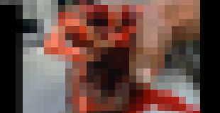 【閲覧注意】NFLフットボール選手が花火で手を負傷した際の画像…。