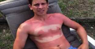 【画像】今年の夏、海に行ってもこんな日焼けはしないようにしてください