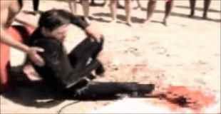 【閲覧注意】痛々しい・・・ サメに襲われ足を食われてしまったサーファー