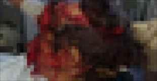 【閲覧注意】クマが出る山で女性の叫び声が聞こえ、行ってみると…(画像)