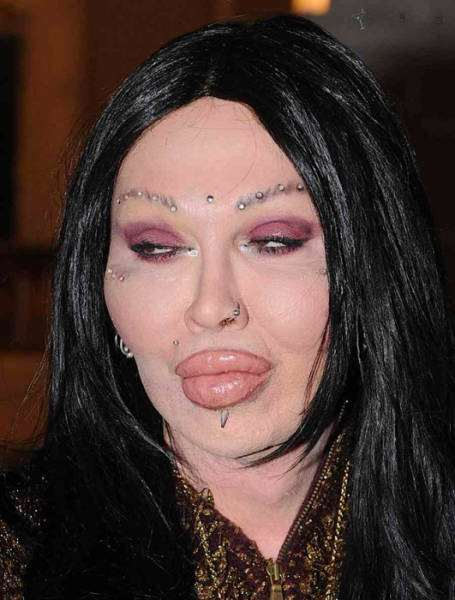 plastic_surgery_fails_that_will_make_you_love_your_natural_looks_640_05